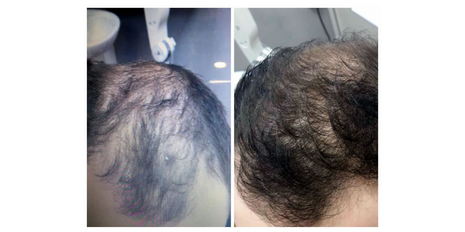 men's hair restoration before and after at Joells haircare lichfield